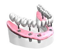 implantes-cerramica