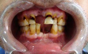 dientes-antes