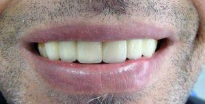 sonrisa-protesis-fija
